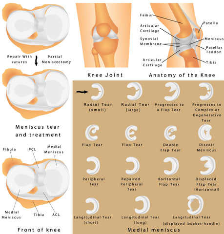 Types of <Meniscus Tears