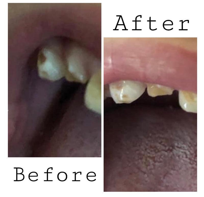 Super Remineralizing Ozonated Tooth Putty (spot treatment)