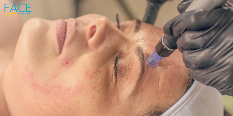 Needle mesotherapy treatment on a woman face