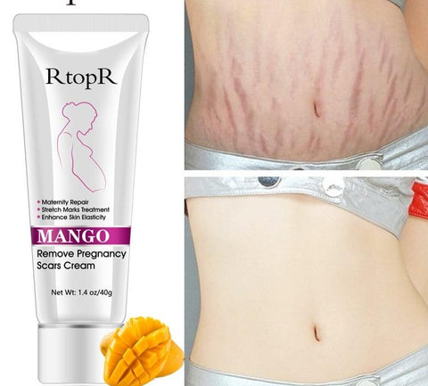 Pre and Post Natal Stretch Mark Repair Treatment