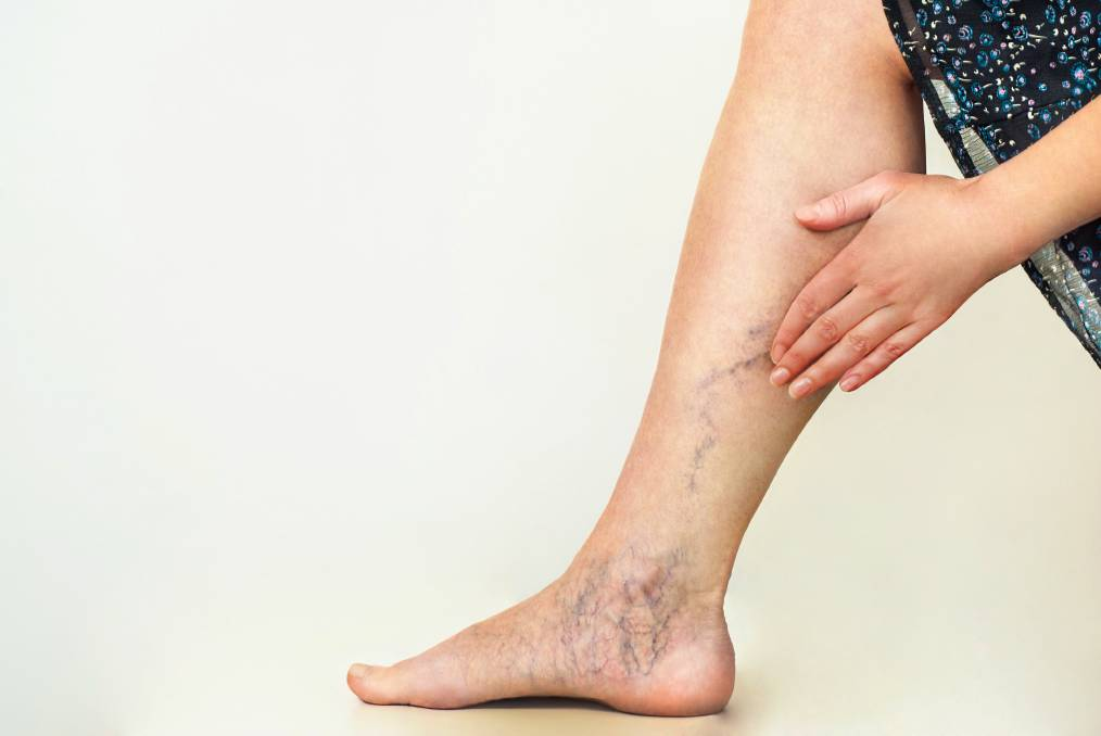 Varicose Veins: An Encyclopedia For Efficient Remedies Suggested By Experts