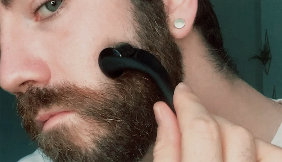 man using beard growth roller