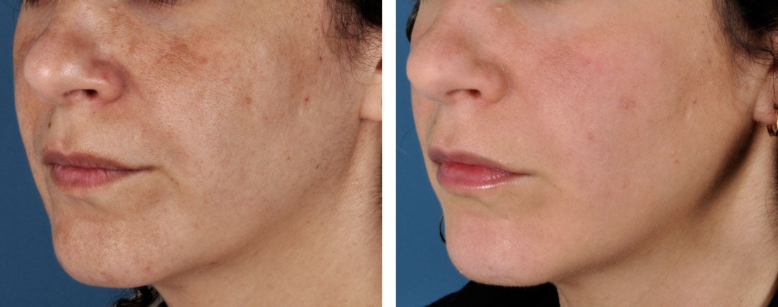 Before and After using ZO Non-Hydroquinone Hyperpigmentation System