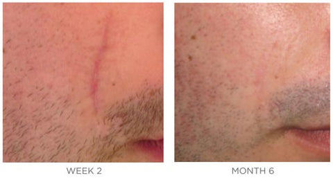 SkinMedica Scar Recovery Gel Before and After 6 months