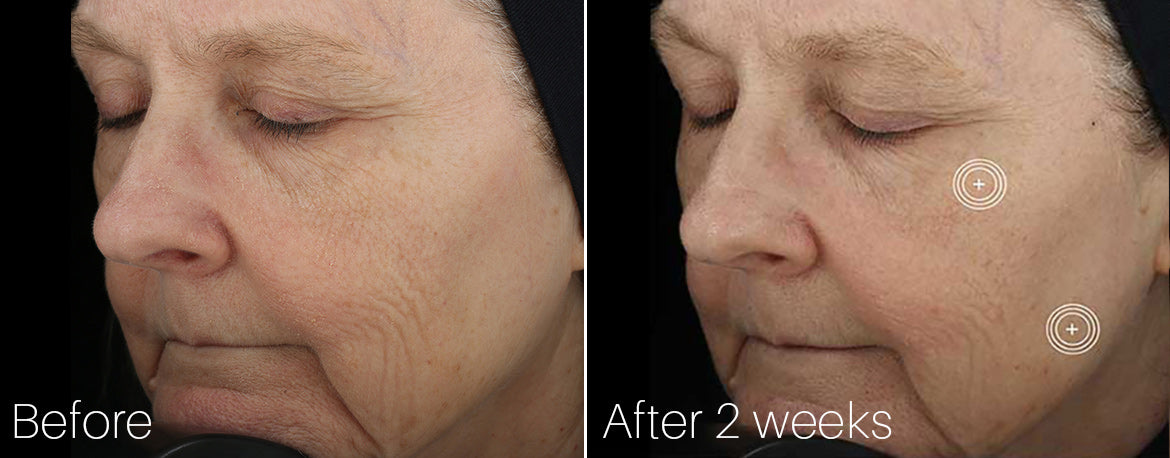 SkinMedica TNS Advanced+ Serum Before and After 2 weeks