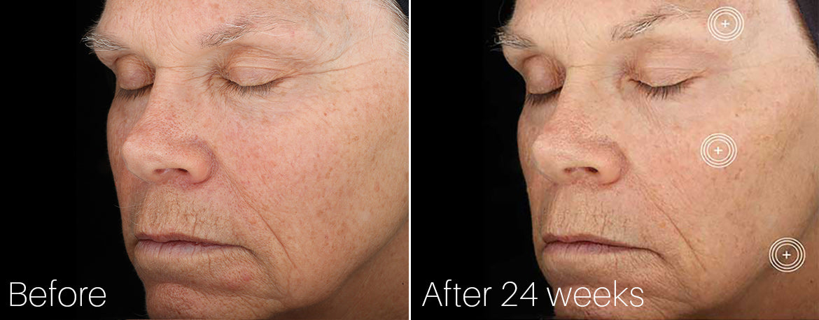 SkinMedica TNS Advanced Serum Before and After 24 Weeks