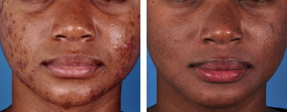 ZO Acne Treatment Pads before and after