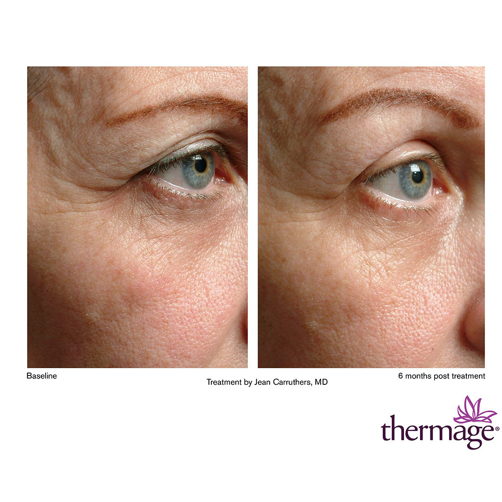 Thermage Skin Tightening