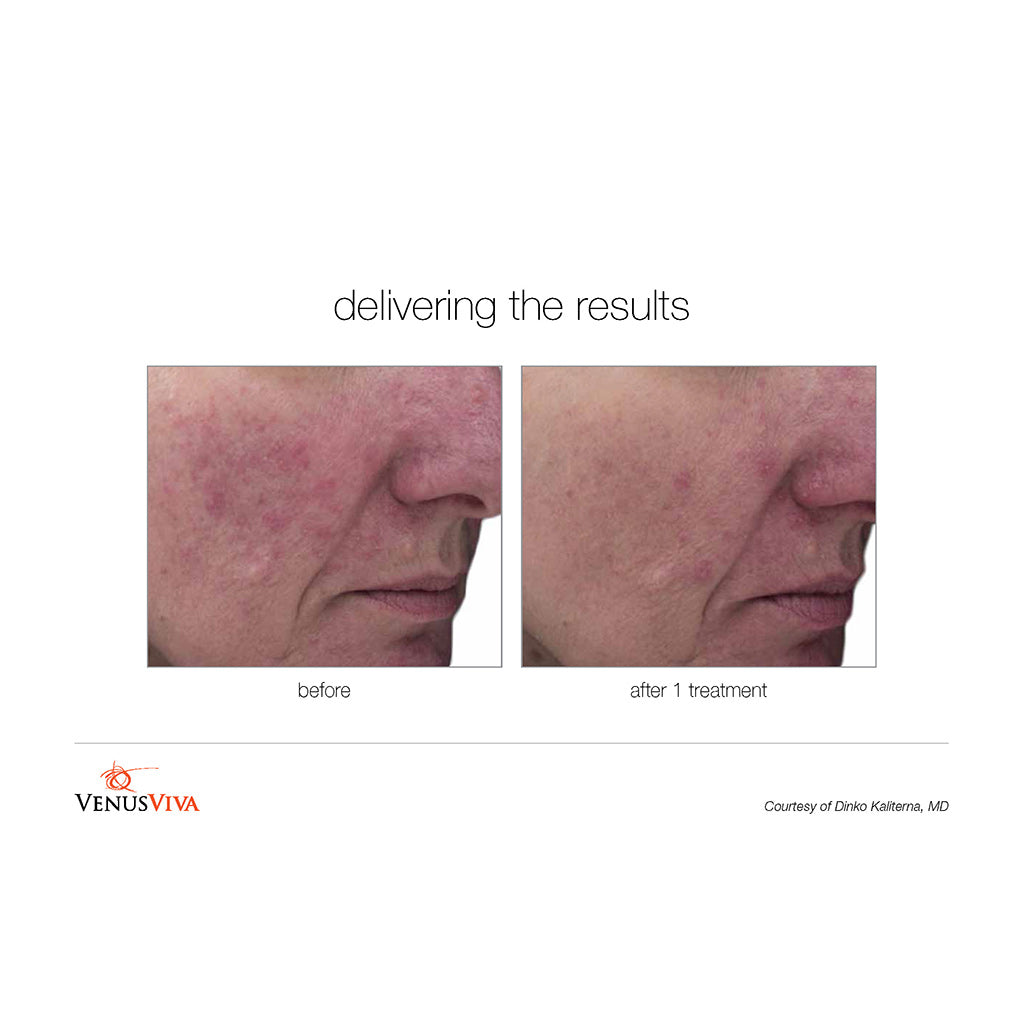 Venus Viva Before and After - 1 treatment