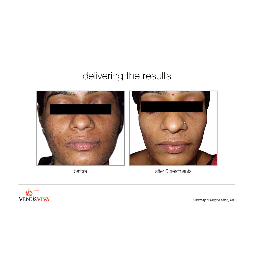 Venus Viva Before and After - 6 treatments