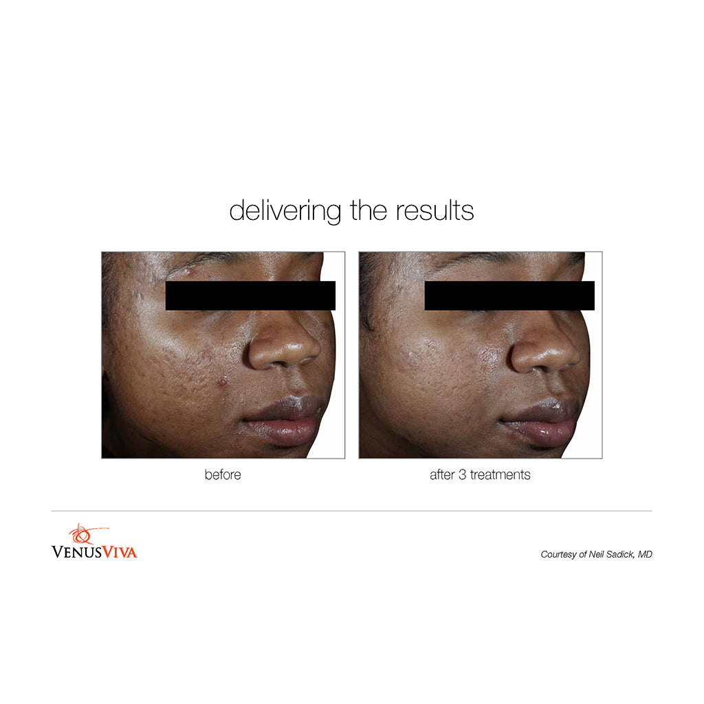 Venus Viva Before and After - 3 treatments