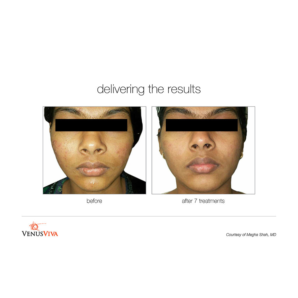 Venus Viva Before and After - 7 treatments