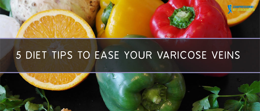 5 Diet Tips to Ease Your Varicose Veins