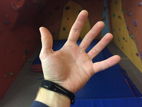 Callused hand post rock climbing