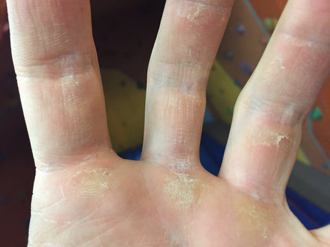 Close up of callused hand post rock climbing