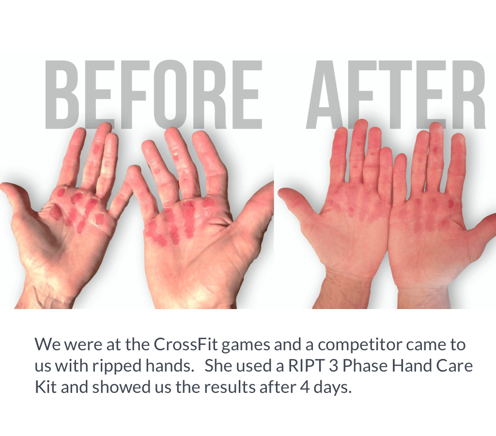RIPT hand care kit before and after photo