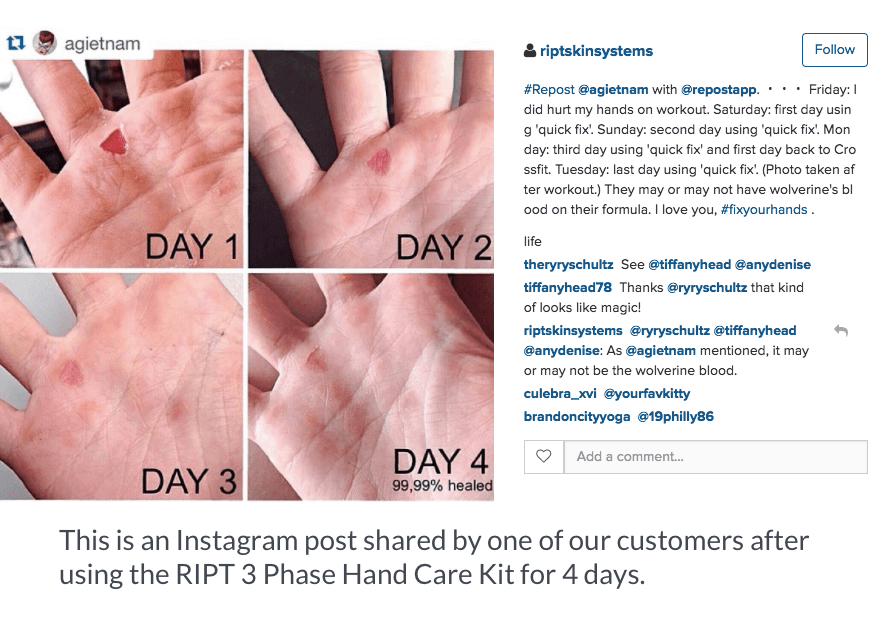 RIPT hand care kit 4 day results