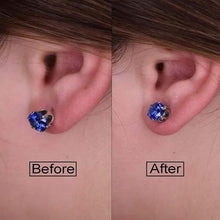 Load image into Gallery viewer, Hypoallergenic Earring Lifter