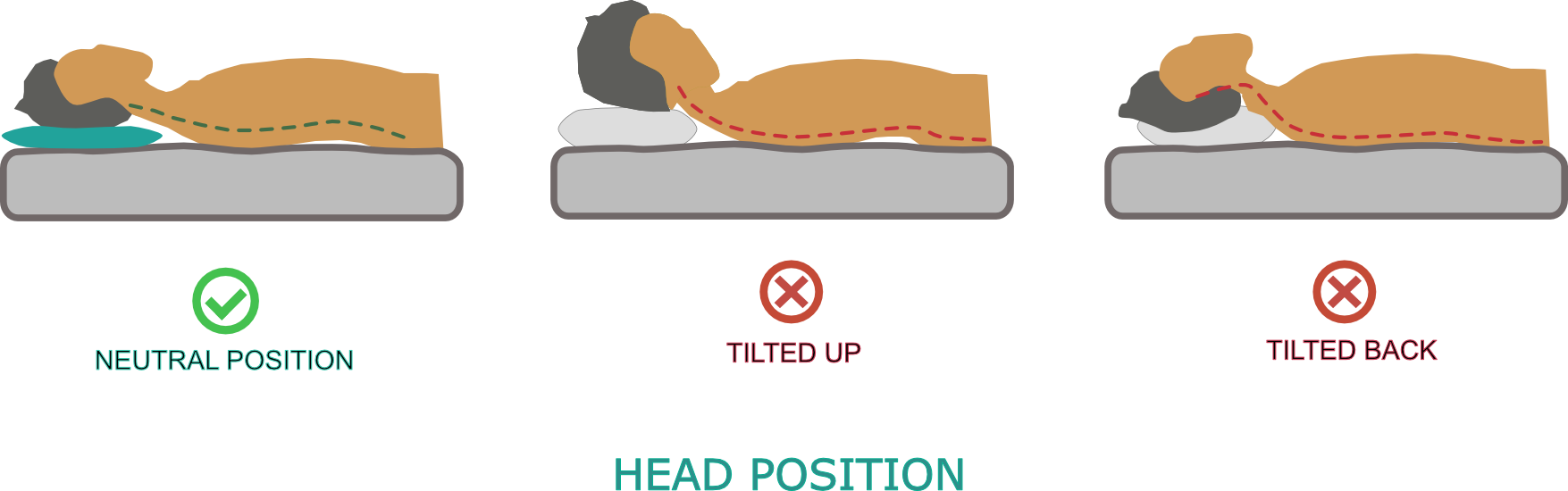 Head position comparison when sleeping on your back - thin flat Blissbury Stomach & Back Sleeping Pillow provides correct neck alignment and support.