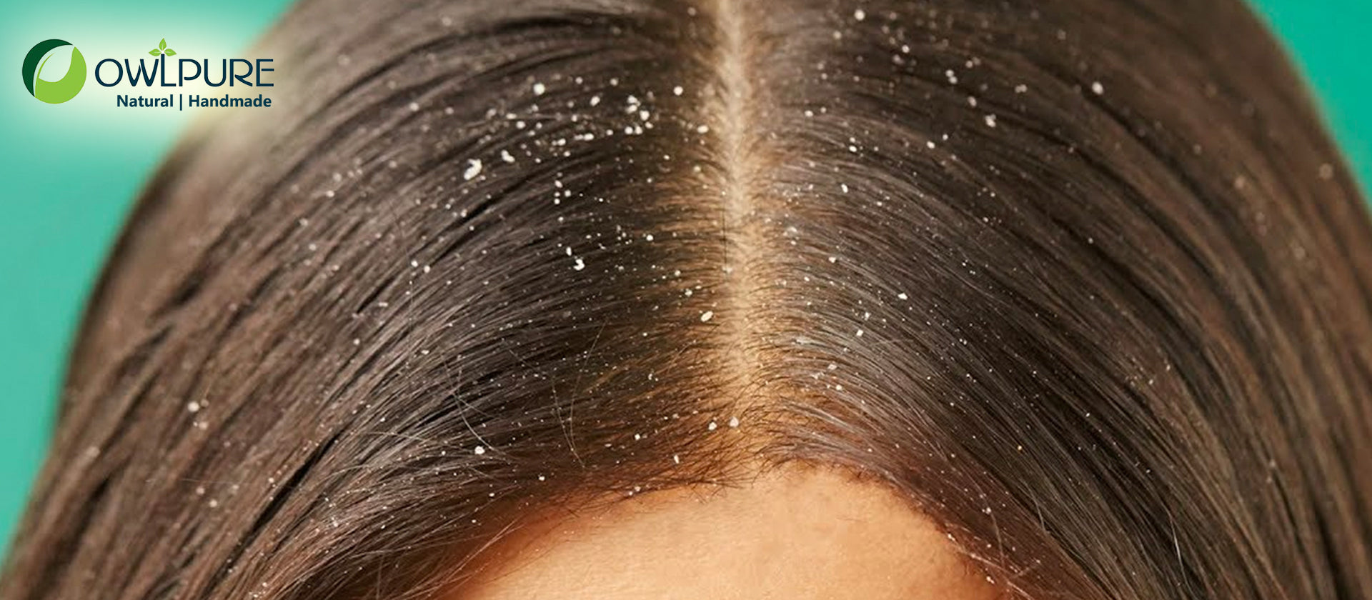 How to get rid of itchy and dandruff scalp naturally?