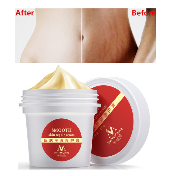Smooth Skin Cream For Stretch Marks Scar Repair Body Cream