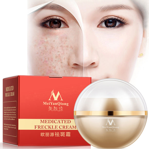 Freckle Cream Skin Care Whitening Anti-aging Moisturizing Cream Melanin Removing Freckle