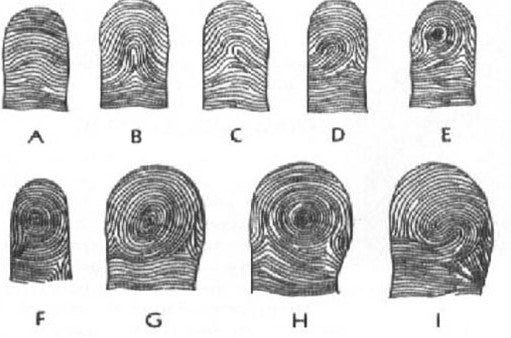 Purkinje's nine types of finger patterns