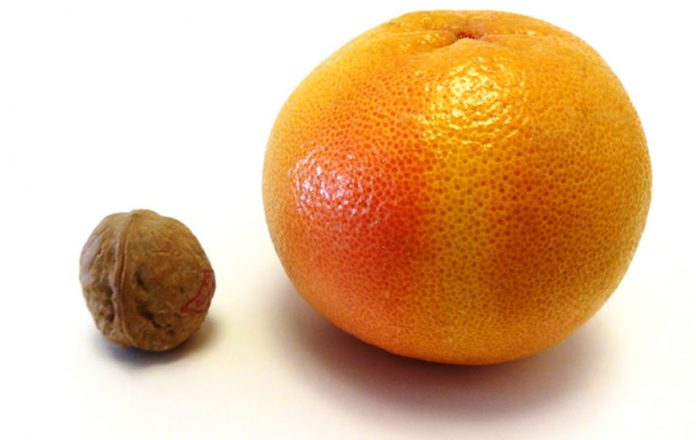 "Is Your Prostate A ""Walnut"" or An ""Orange?"""