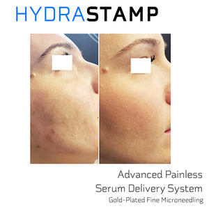 HYDRASTAMP DIY Derma EZ Jet Microneedling Kit (For Uneven Skin Texture, Pores and Scars)