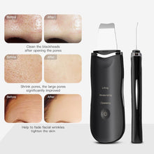 Load image into Gallery viewer, Ionic Ultrasonic Facial Skin Scrubber