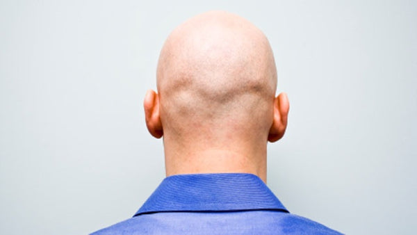 Can Being Bald Save Your Life?