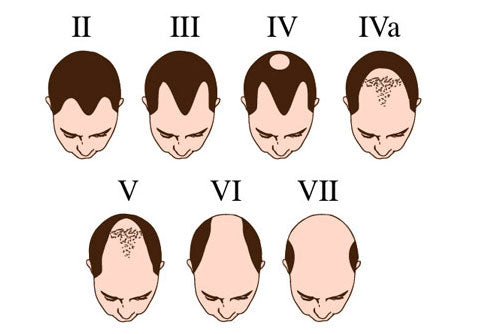 The Timeline of Balding