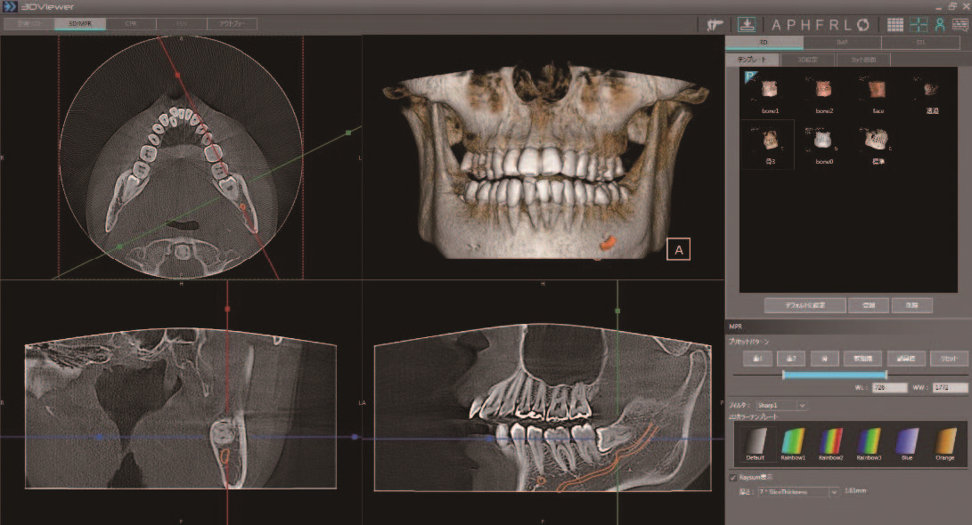 Panoura X-Era Panoramic & CBCT Imaging System
