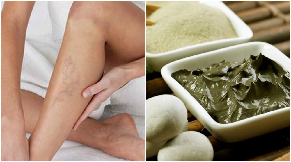 TRATAMIENTO PEDICURA SPA FOCUS - mispa-centro-e-i-s