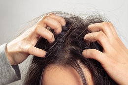 Benefits of hair oil treats itchy and dry scalp