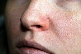Tips to fix signs of ageing dry skin