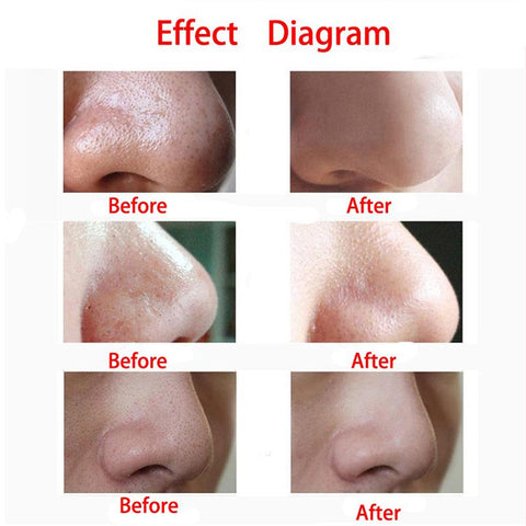 4 In 1 Vacuum Suction Pore Cleanser - Remove Your Blackheads!