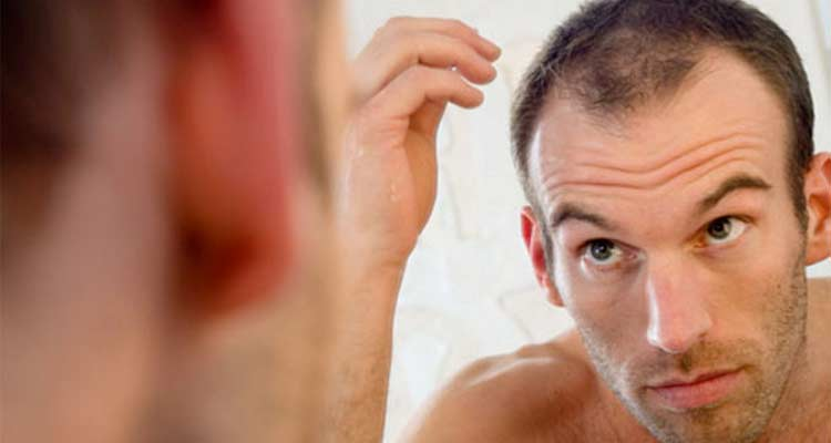 Can Hair Loss Be Prevented