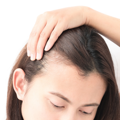 Are Nano Rings suitable for thin hair?