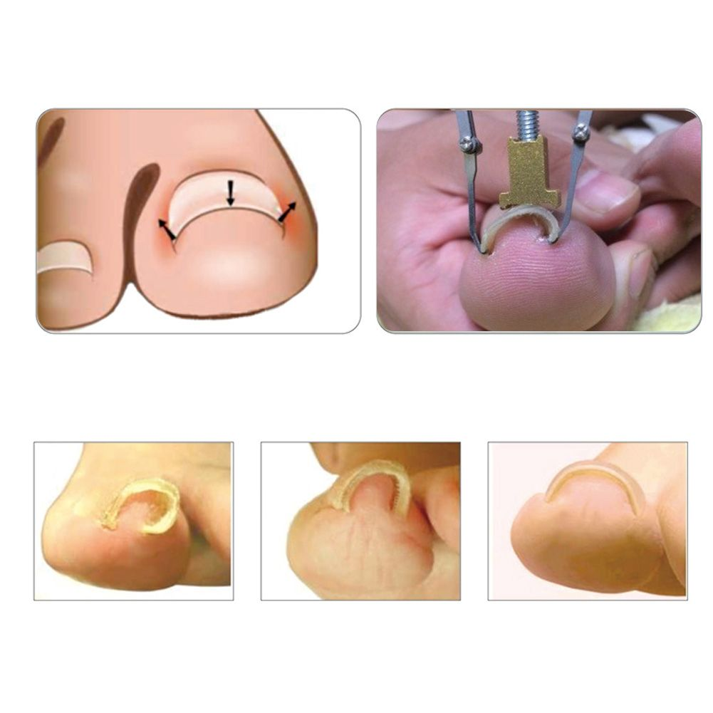 Professional Ingrown Toe Nail Correction Tool Pedicure Tool