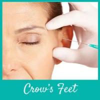 Target Crows Feet - Organic Skincare Options for Anti-Aging