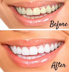 Before and After. Brighten your Smile for White Teeth