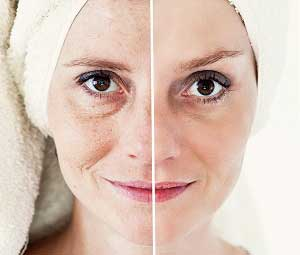 exfoliation to fade spots