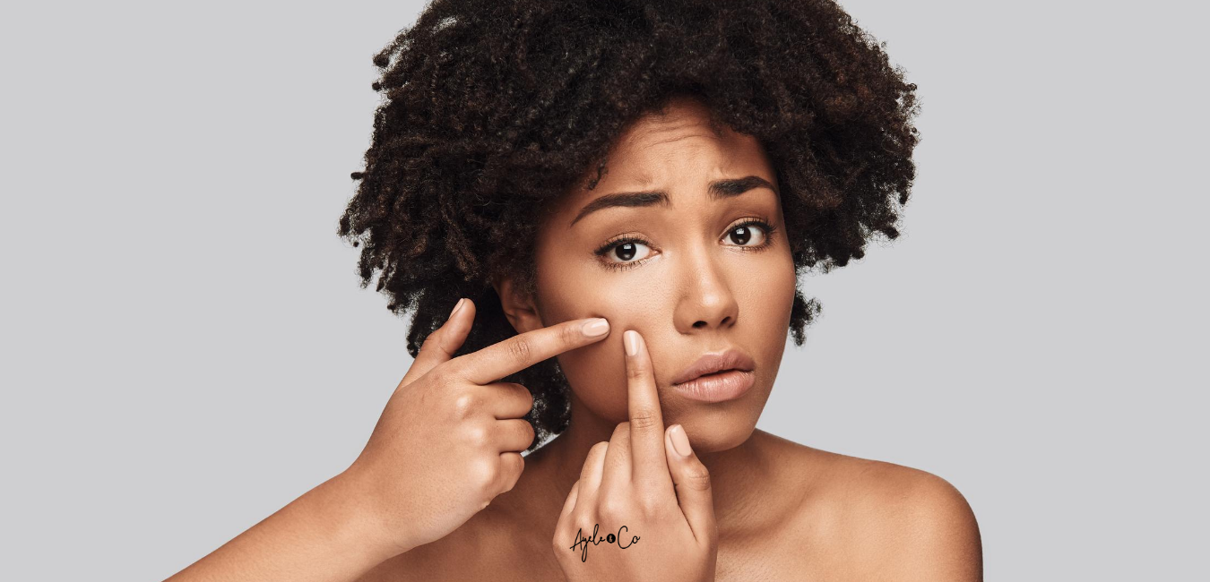 3 THINGS YOU SHOULD NEVER DO IF YOU WANT CLEAR SKIN