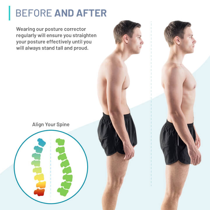 Image result for posture corrector before and after