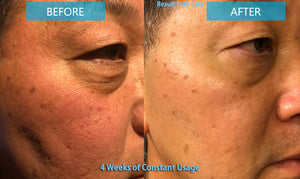 Lifting Up Mask Pack 8 Treatments