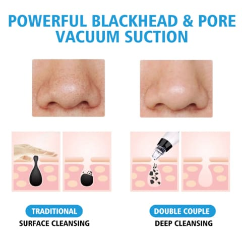 Revitalized Skin Care Blackhead Vacuum