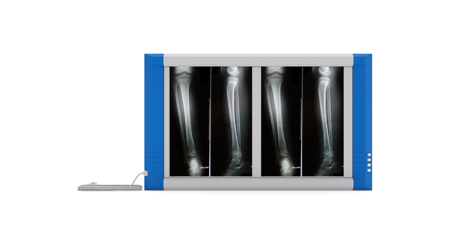 Medical X-Ray Light Box