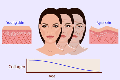 Signs of lack of collagen