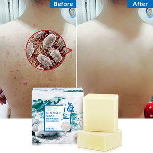Removal Pimple Pore Acne Treatment Sea Salt Soap